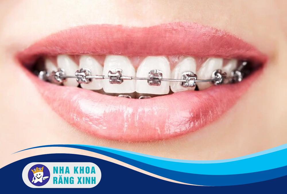 Bảng báo giá dịch vụ niềng răng giá rẻ chất lượng