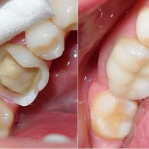 sâu răng
