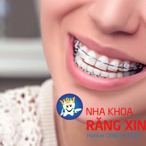 niềng răng - phương pháp thẩm mỹ răng hoàn hảo