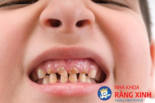 Răng sún