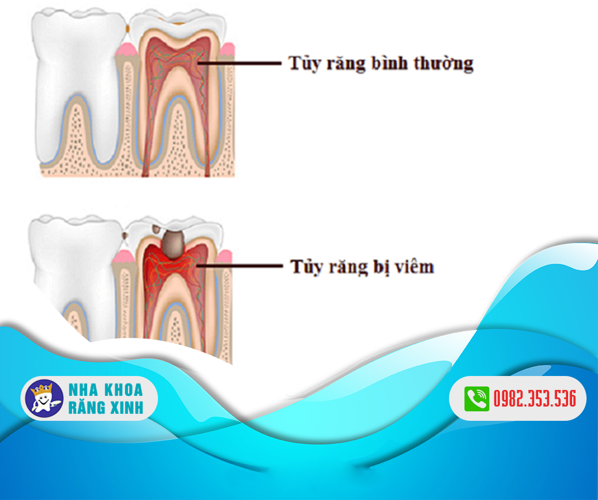 Chữa bệnh viêm tủy răng như thế nào?
