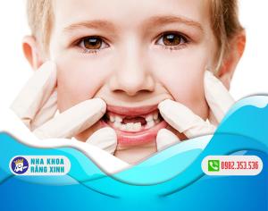 Sâu răng sữa ở trẻ nhỏ và các cách phòng tránh đơn giản, triệt để