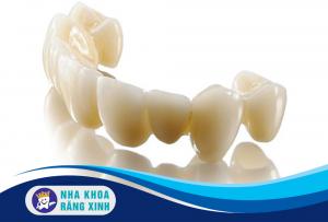 top 3 mão răng sứ phổ biến