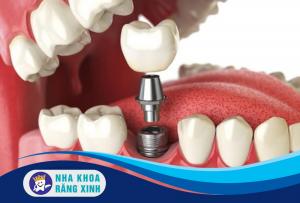 cắm ghép implant cho răng hàm