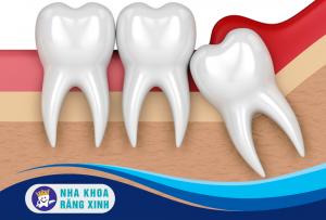 biến chứng răng khôn