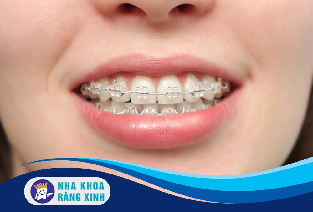 chăm sóc răng miệng đúng cách sau khi niềng răng