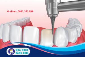 mài răng trong kỹ thuật bọc sứ có hại không