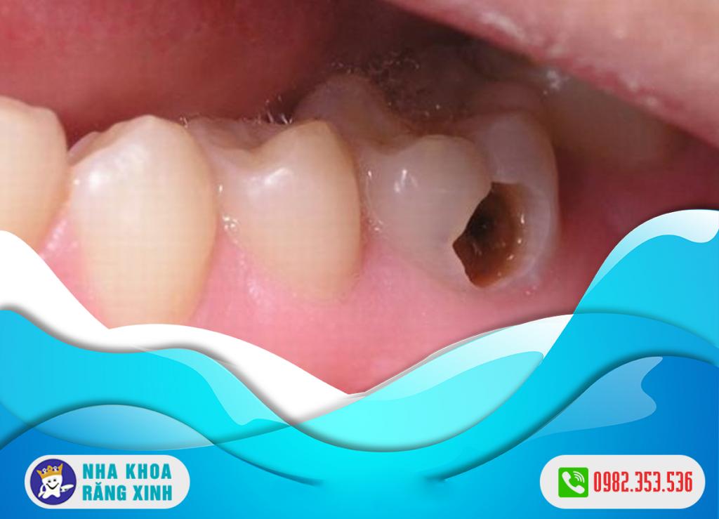 sâu răng có nguy hiểm không