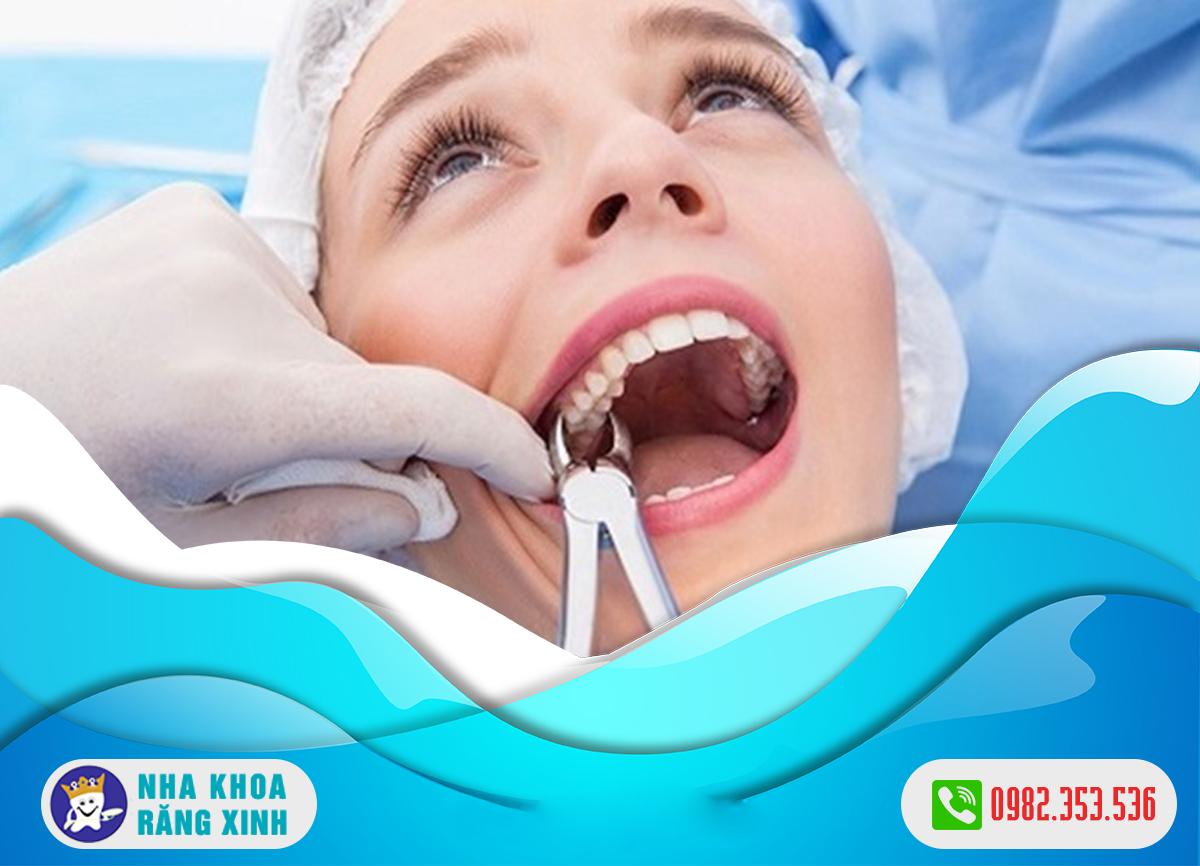 Nhổ răng không đau ở đâu?