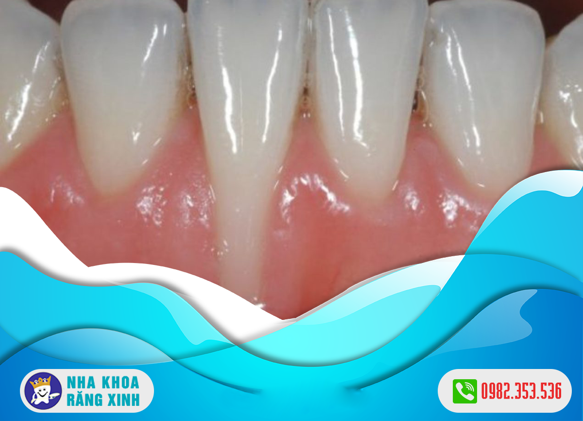 Ê buốt răng hàm dưới do các bệnh răng miệng nào gây nên ?