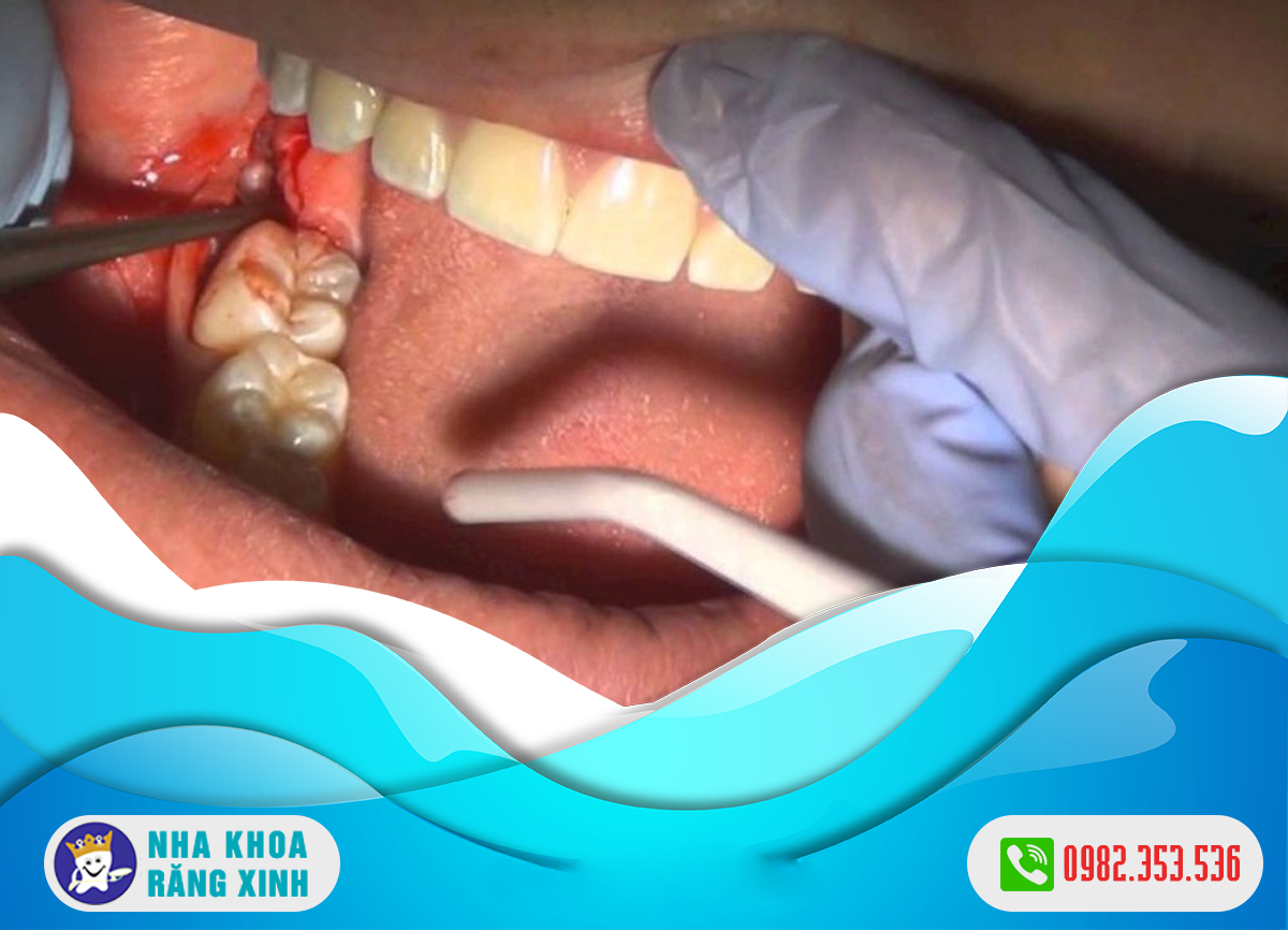 Cách điều trị viêm ổ răng khô thế nào ?