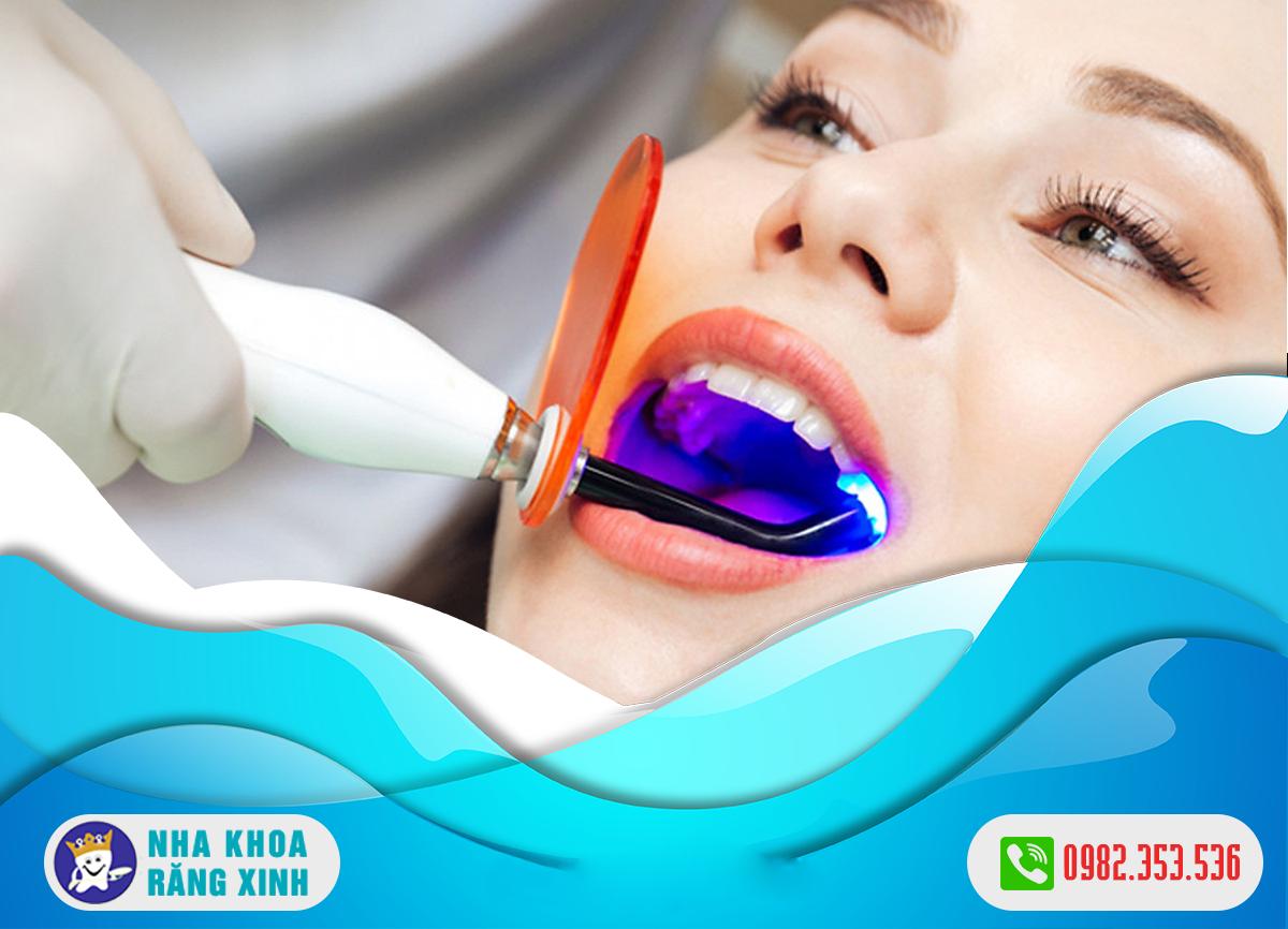 Tẩy trắng răng nhanh với hệ thống Luma Cool