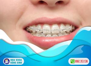 lợi ích của việc niềng răng là gì